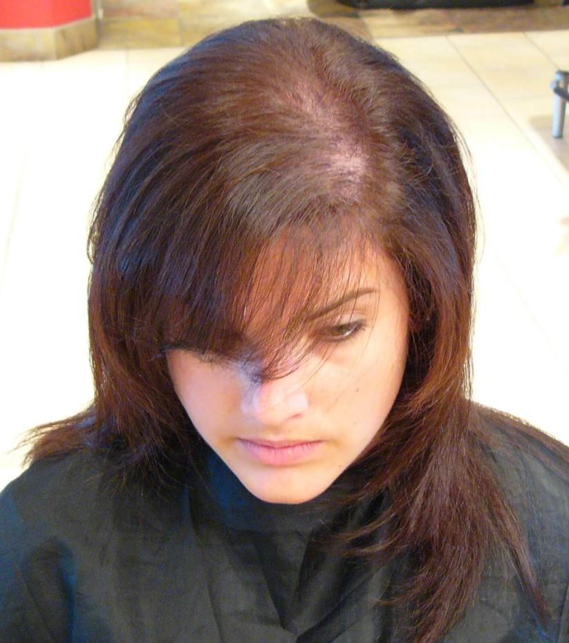 prezgodnje izpadanje las